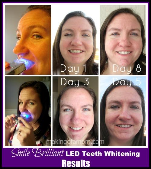 Smile-Brilliant-Results